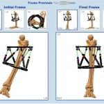 Correzione deformità con fissatore esterno computerizzato ginocchio varo ginocchio valgo