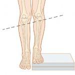 DISMETRIA ARTI Leg length discrepancy
