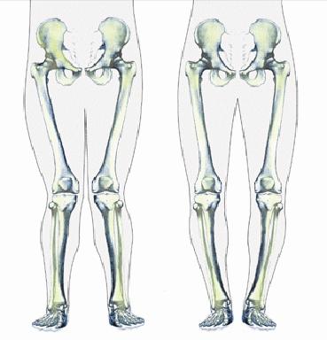 Deformita Limb Deformities