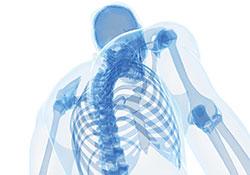 Deformita arti Limb deformities