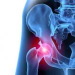 dolore anca hip pain