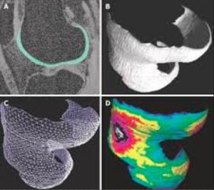 Chirurgia computerizzata del ginocchio