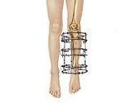 Allungamento arti monolaterale limb lenghtening