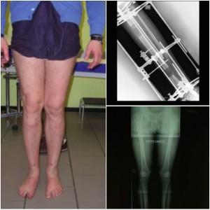 Leg lengthening allungamneto gambe