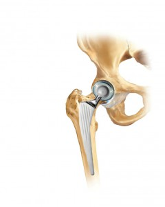 protesi totale anca posizionata artrosi