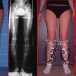 Correzione gambe storte, correzione ginocchia vare
