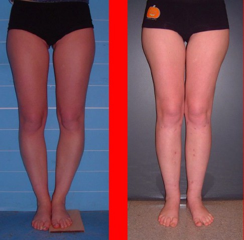 Correzione chirurgica gambe storte, Correzione gambe storte, correzione ginocchia vare, gambe storte chirurgia, gambe storte chirurgia estetica, gambe storte chirurgia plastica, gambe a x chirurgia