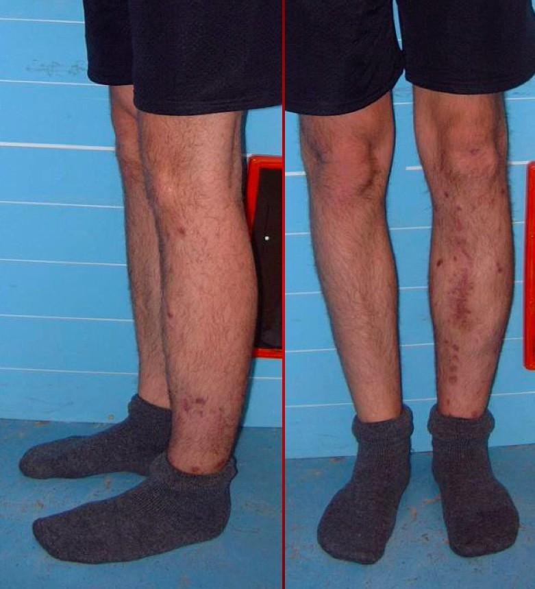 Trattamento pseudoartrosi frattura non guarita