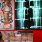 Trattamento pseudoartrosi frattura non guarita ilizarov