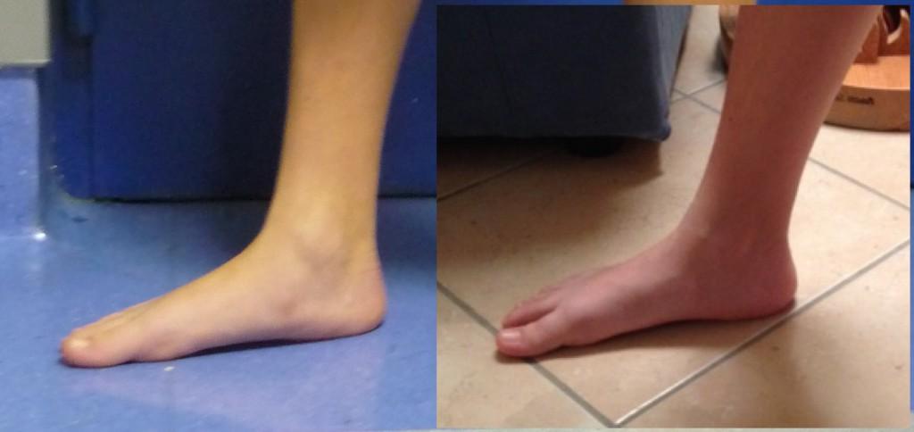 trattamento piede piatto calcagno stop