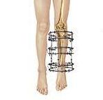 Allungamento arti limb lenghtening