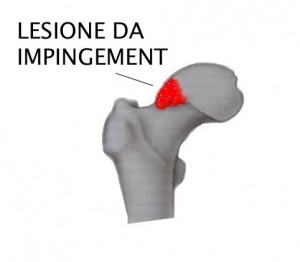 FAI IMPINGEMENT FEMORO ACETABOLARE