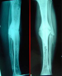RX Trattamento pseudoartrosi frattura non guarita