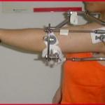Achondroplasia surgery Humerus Lengthening Allungamneto omero acondroplasia