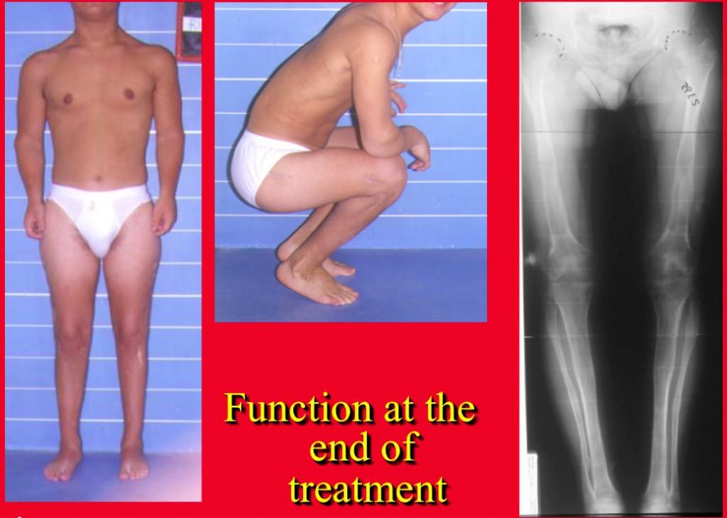 End of treatment Achondroplasia Acondroplasia Surgery